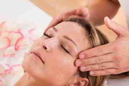 Akupunktur zur Unterstützung beim Abnehmen